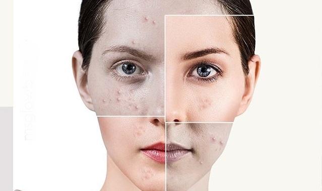 maquillaje para ocultar el acne